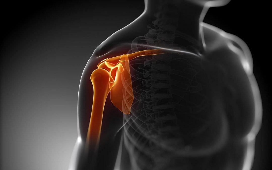 Instabilità di spalla